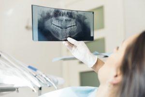 Nell'ambito della chirurgia orale rientrano tutti quegli interventi che servono a ripristinare le funzioni, l'estetica e la salute del cavo orale