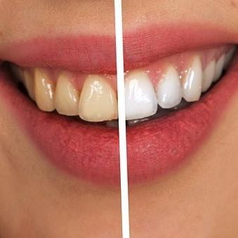 Igiene orale e trattamenti estetici