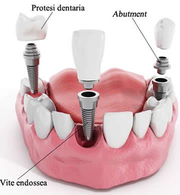 Implantologia - Diversi dettagli sull'implantologia