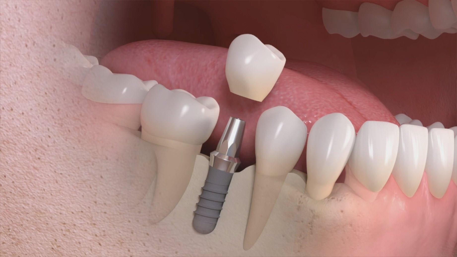 Implantologia - Ricostruzione 3D di un impianto.