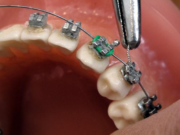 Ortodonzia - applicazione di un apparecchio ortodontico.