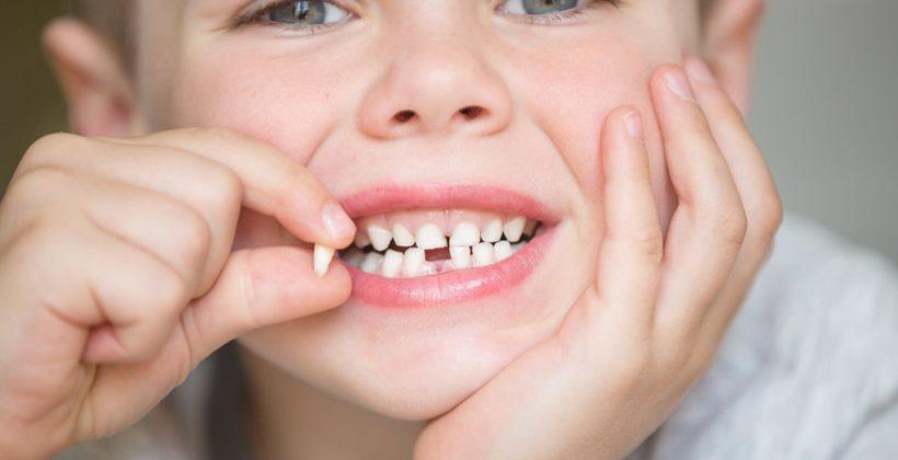 Denti da latte….questi sconosciuti. Il punto della loro importanza